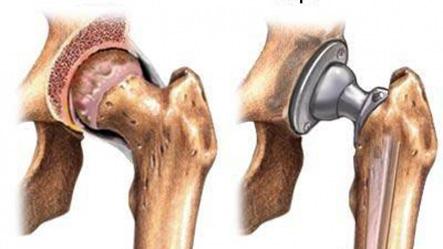 Замена тазобедренного сустава в чебоксарах
