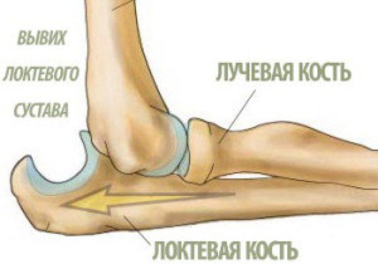 Упражнения для локтевого сустава после вывиха