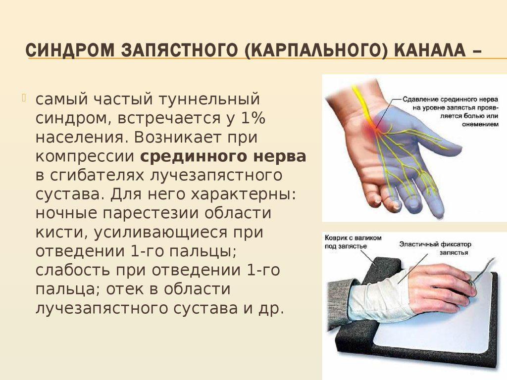 Чем лечить онемение рук в домашних условиях