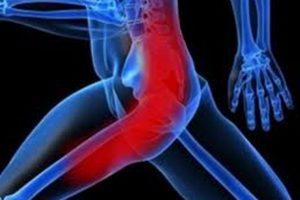 Невралгия тазобедренного сустава симптомы и лечение