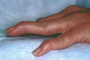 При каких заболеваниях суставов поднимается температура. Бывает ли температура при артрозе
