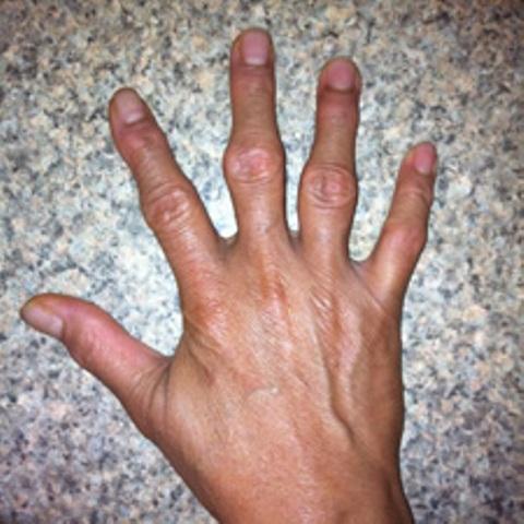 Артроз кистей рук начальной стадии