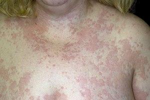 Как вылечить крапивницу раз и навсегда — Аллергия